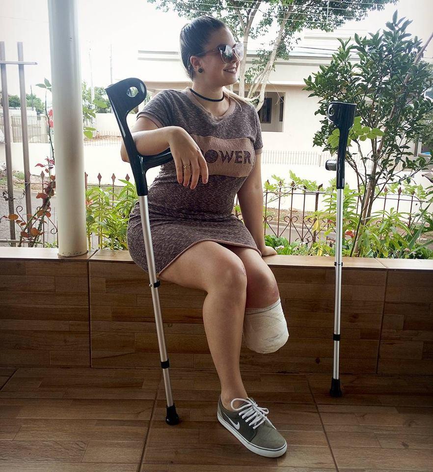 Jovem que teve o pé amputado conta como está vivendo após o acidente